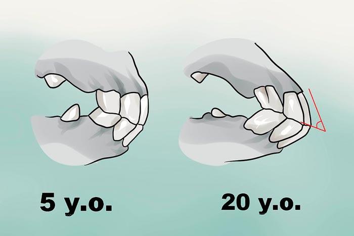 зубы коня в 5 и 20 лет