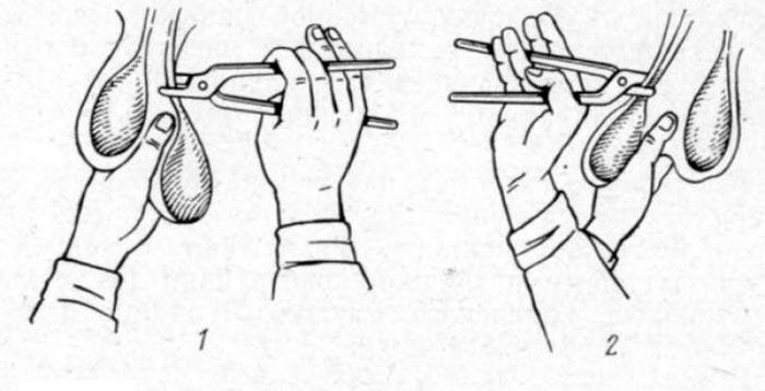 кастрация с помощью щипцов